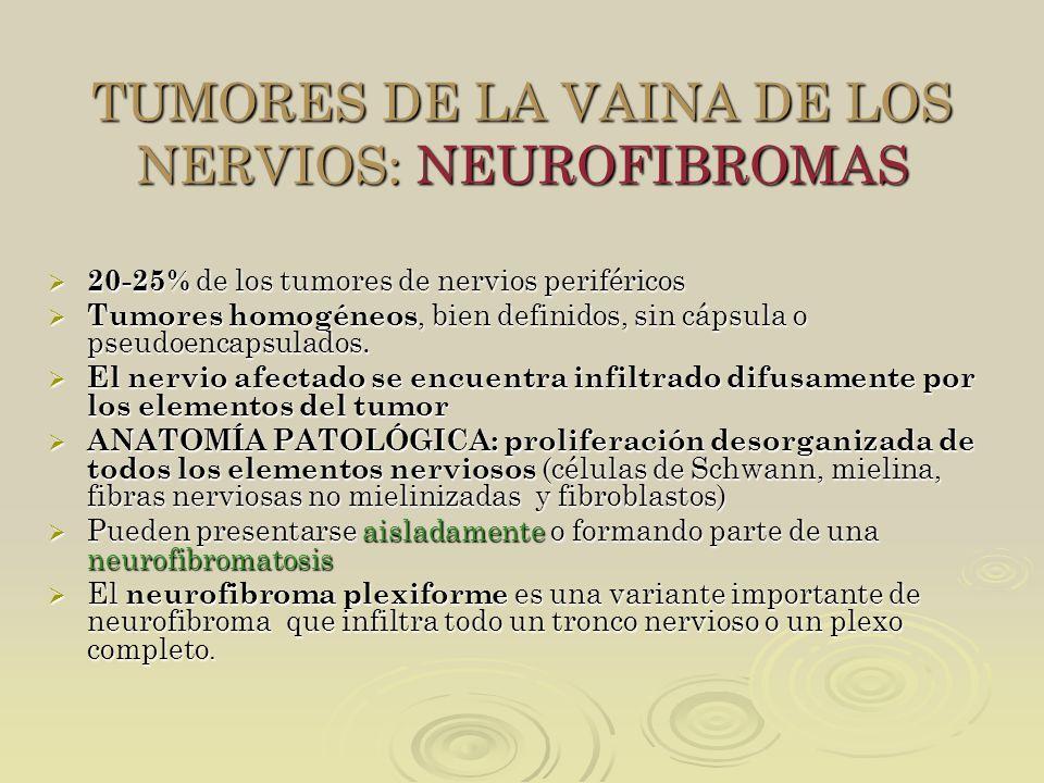 TUMORES DE LA VAINA DE LOS NERVIOS: NEUROFIBROMAS