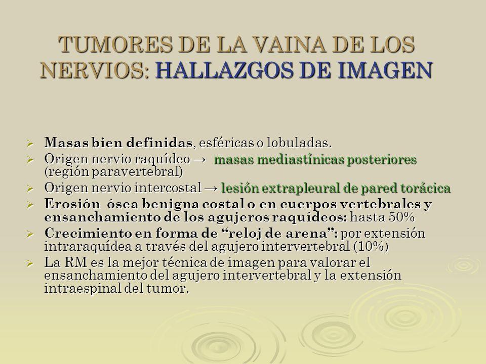 TUMORES DE LA VAINA DE LOS NERVIOS: HALLAZGOS DE IMAGEN