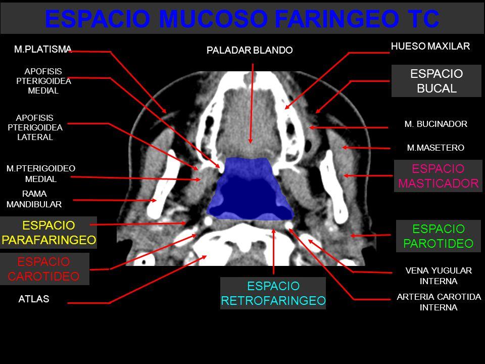 ESPACIO MUCOSO FARINGEO TC