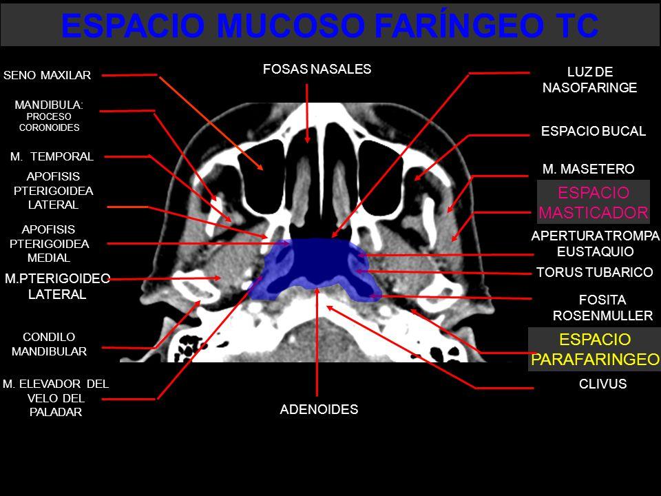 ESPACIO MUCOSO FARÍNGEO TC