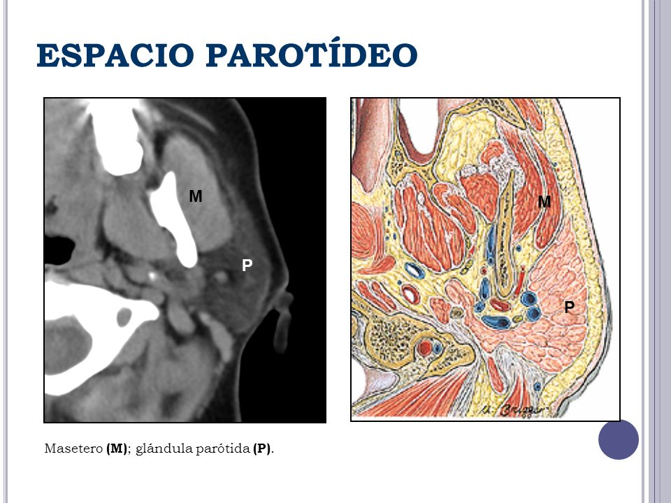 ESPACIO PAROTÍDEO M M P P Masetero (M); glándula parótida (P).