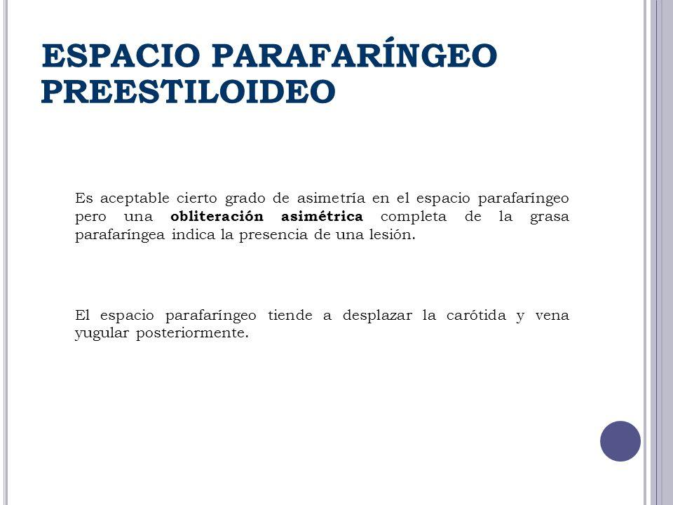 ESPACIO PARAFARÍNGEO PREESTILOIDEO