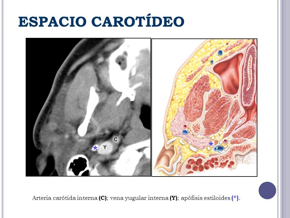 ESPACIO CAROTÍDEO C. * C. * Y. Y.