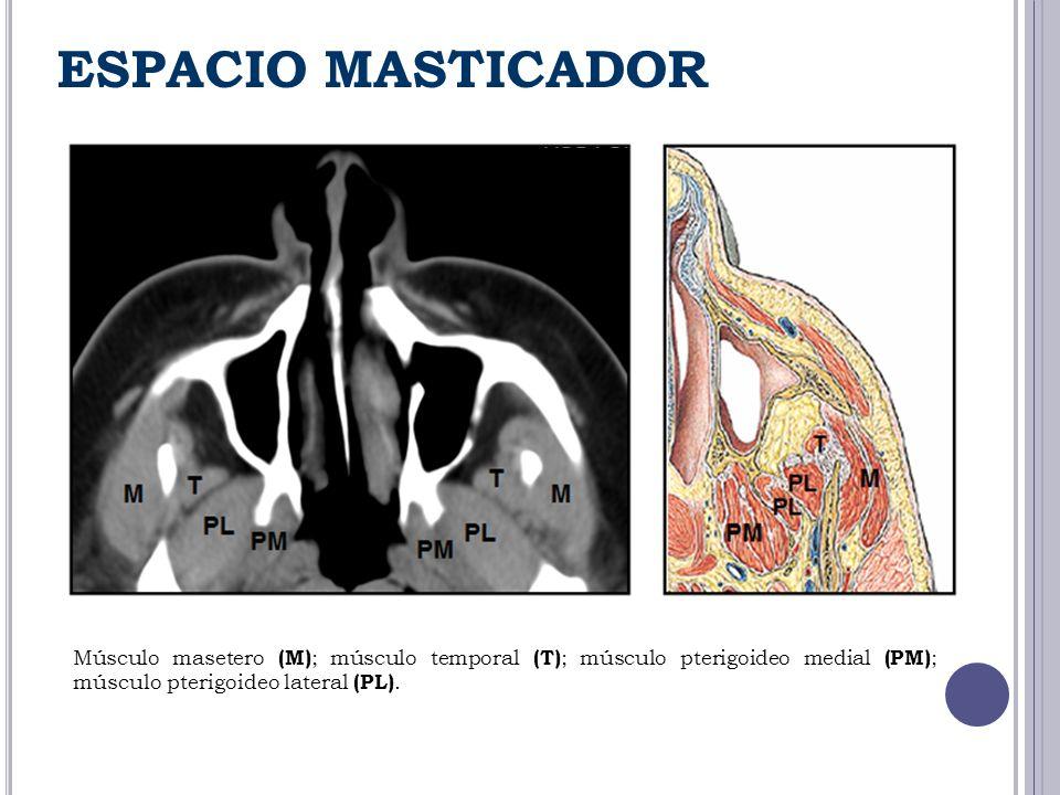 ESPACIO MASTICADOR Músculo masetero (M); músculo temporal (T); músculo pterigoideo medial (PM); músculo pterigoideo lateral (PL).