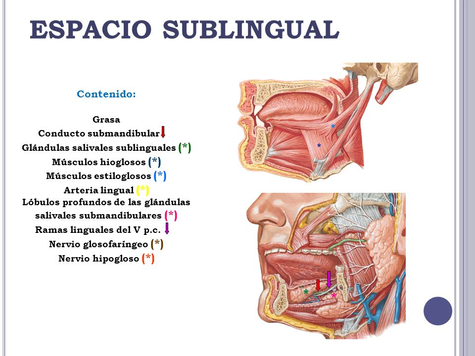 ESPACIO SUBLINGUAL Contenido: Grasa Conducto submandibular (*)