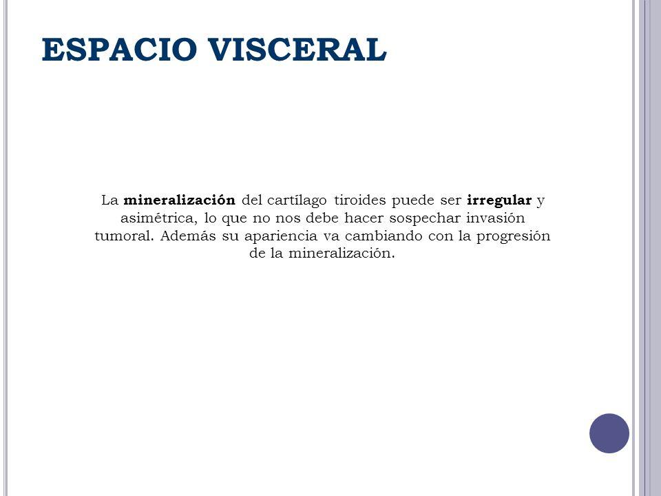 ESPACIO VISCERAL