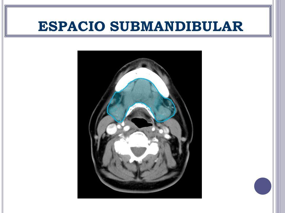 ESPACIO SUBMANDIBULAR