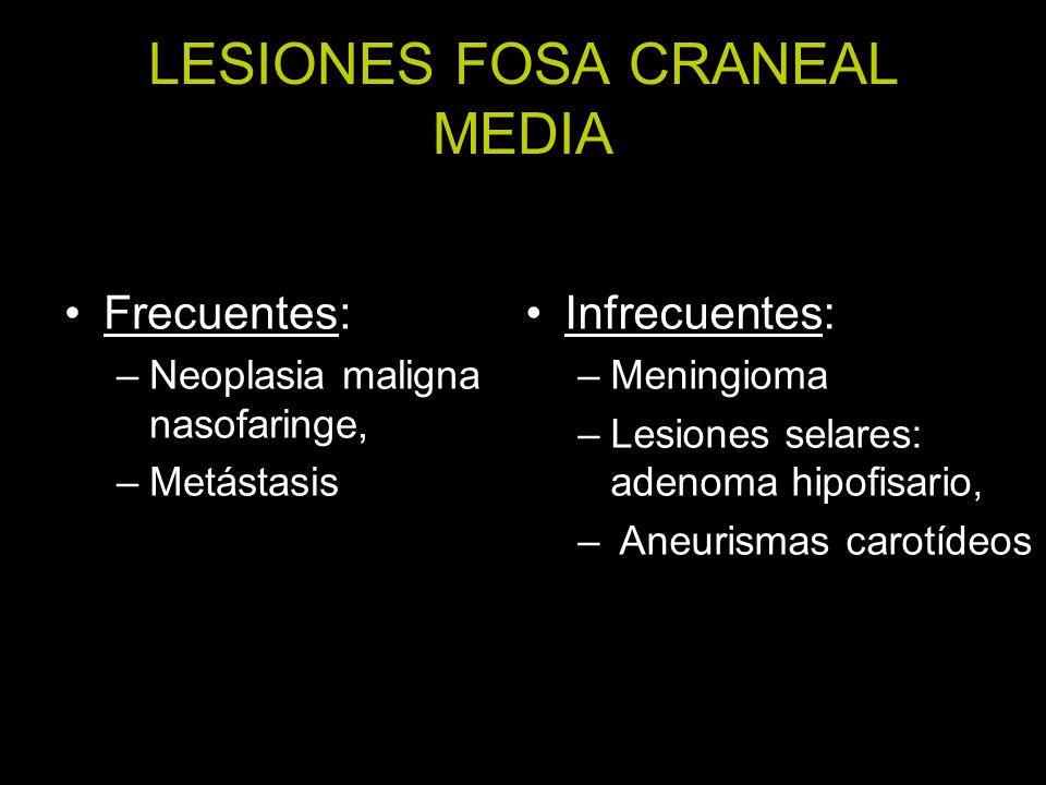 LESIONES FOSA CRANEAL MEDIA