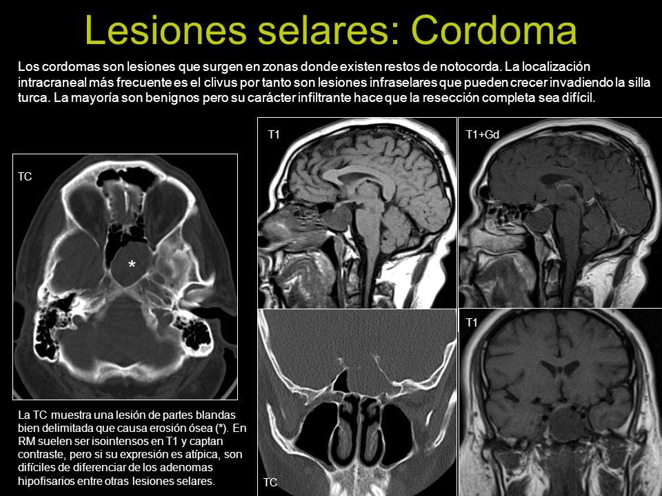 Lesiones selares: Cordoma