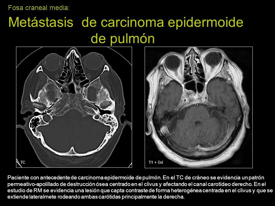 Fosa craneal media: Metástasis de carcinoma epidermoide de pulmón
