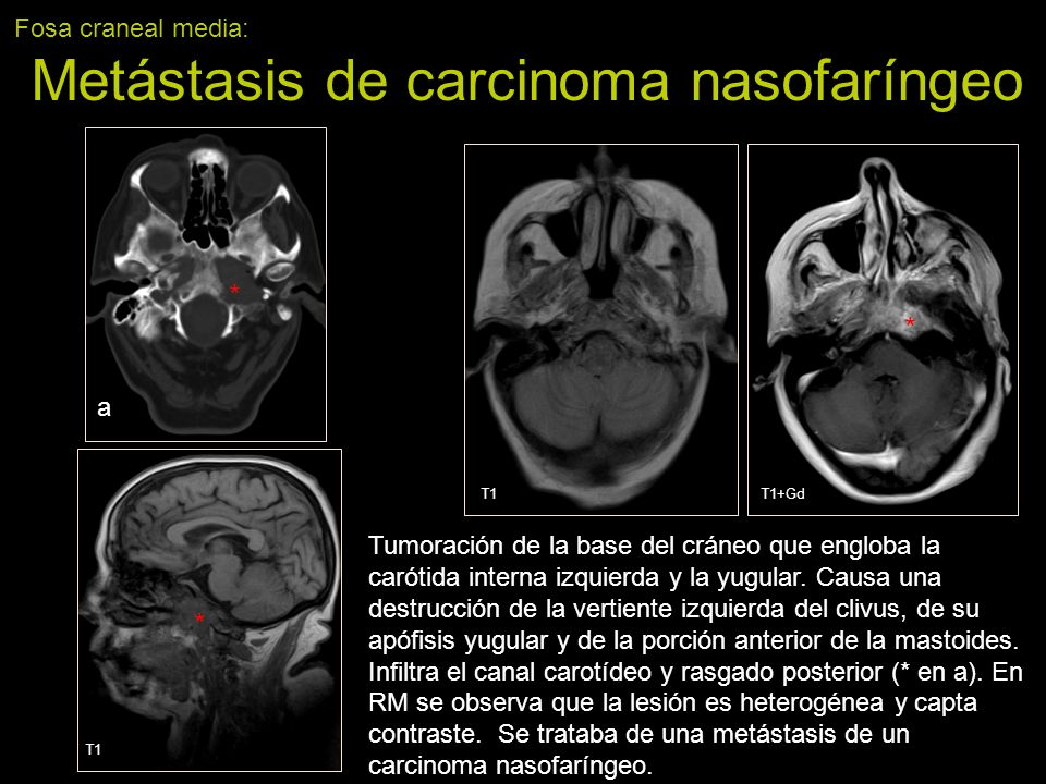 Fosa craneal media: Metástasis de carcinoma nasofaríngeo