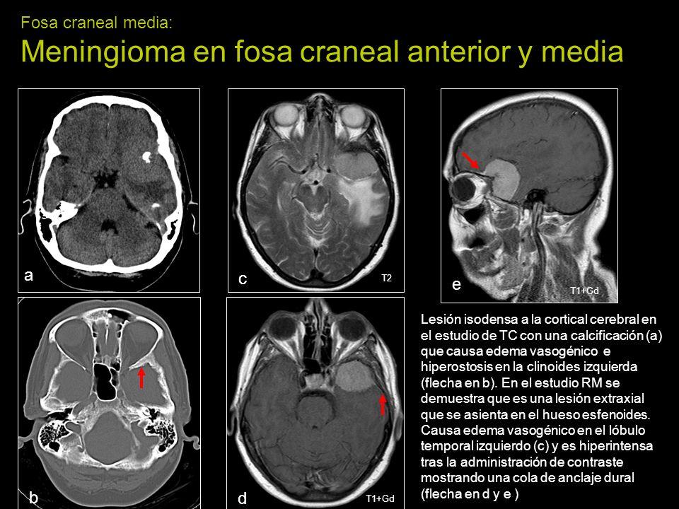 Fosa craneal media: Meningioma en fosa craneal anterior y media
