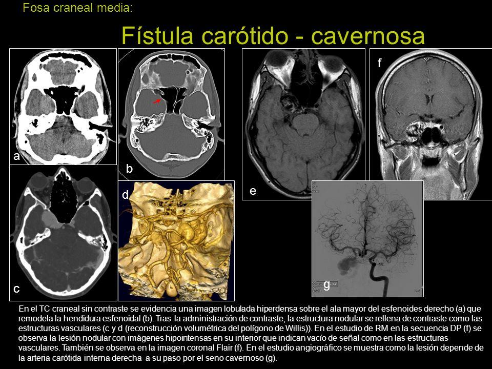 Fosa craneal media: Fístula carótido - cavernosa