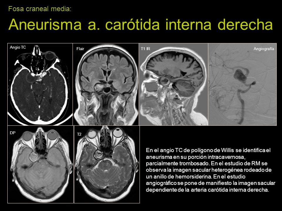 Fosa craneal media: Aneurisma a. carótida interna derecha