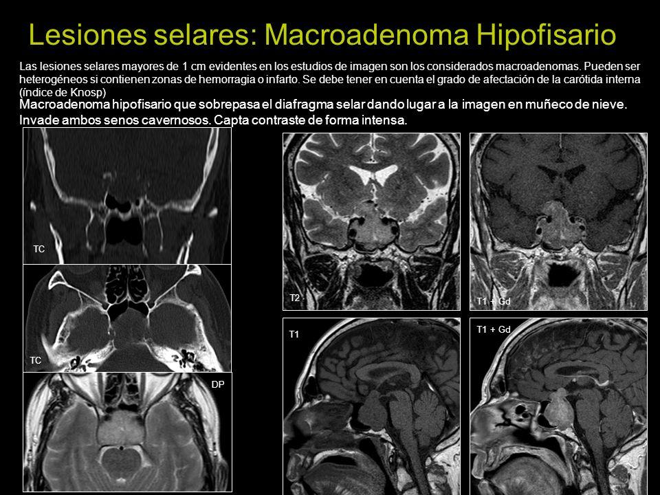 Lesiones selares: Macroadenoma Hipofisario