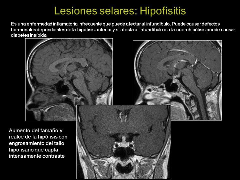 Lesiones selares: Hipofisitis