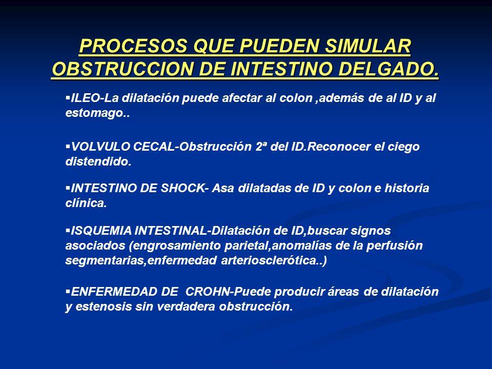 PROCESOS QUE PUEDEN SIMULAR OBSTRUCCION DE INTESTINO DELGADO.