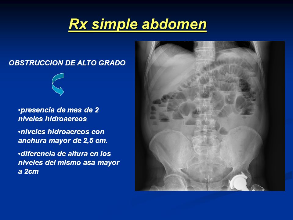 Rx simple abdomen OBSTRUCCION DE ALTO GRADO