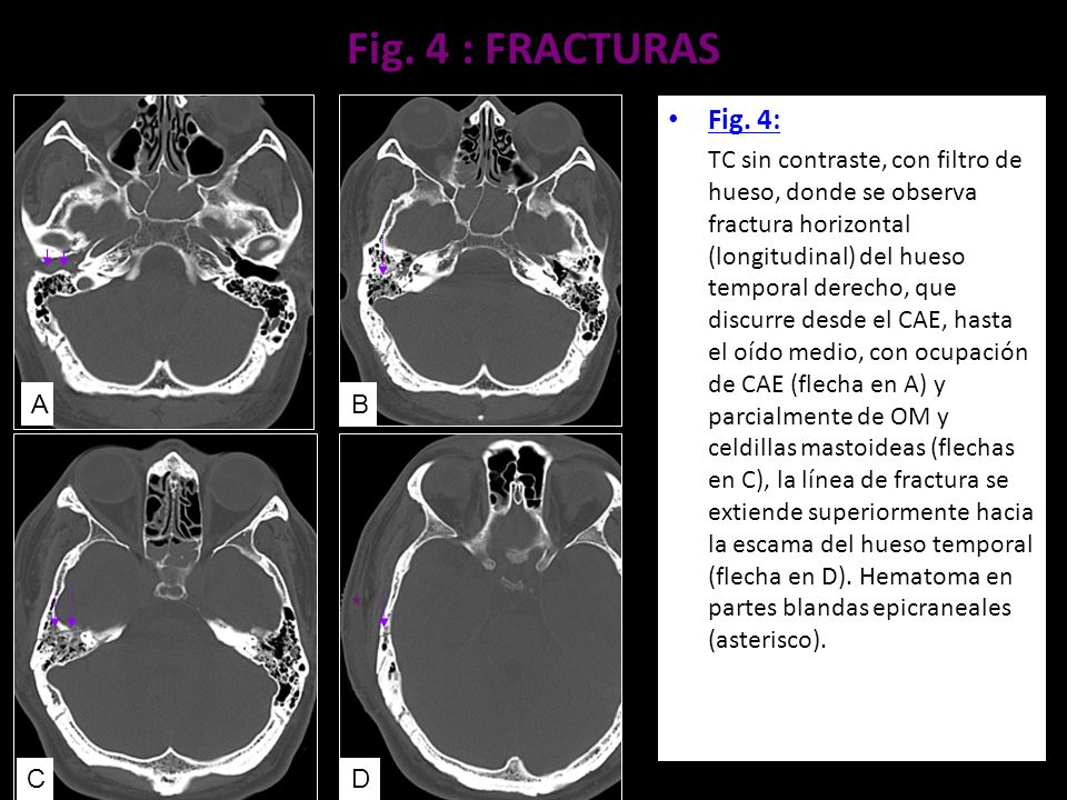 Fig. 4 : FRACTURAS Fig. 4: