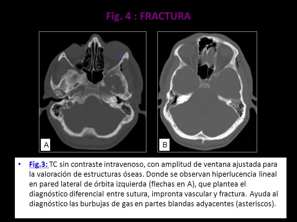 Fig. 4 : FRACTURA * * A. B.