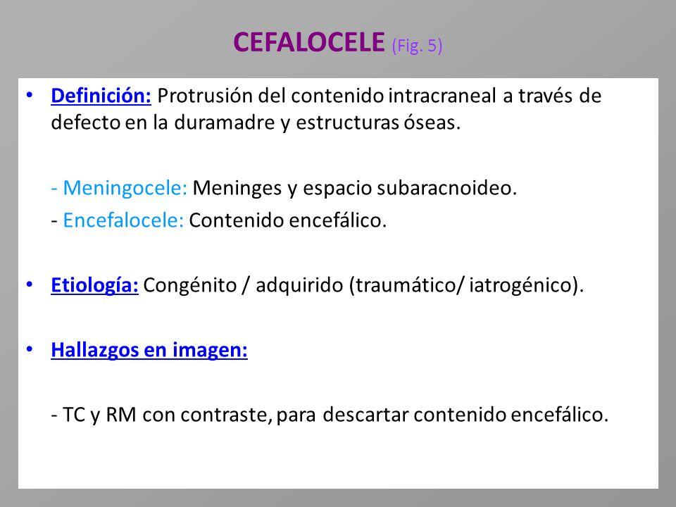 CEFALOCELE (Fig. 5) Definición: Protrusión del contenido intracraneal a través de defecto en la duramadre y estructuras óseas.