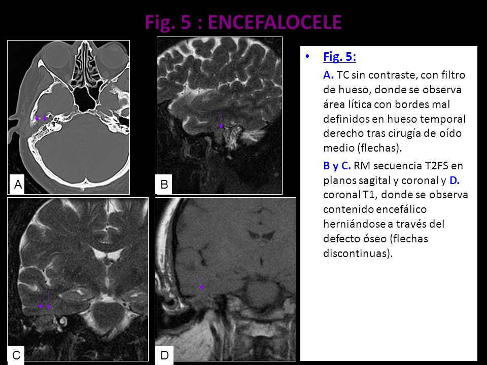 Fig. 5 : ENCEFALOCELE Fig. 5: