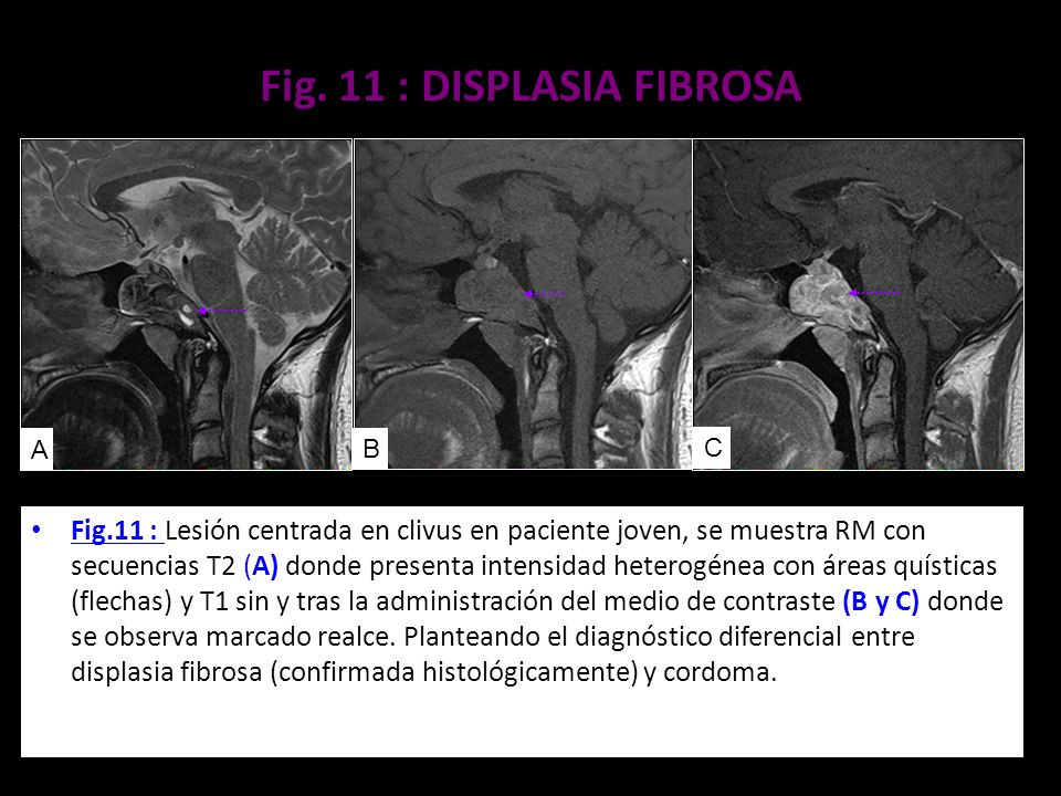 Fig. 11 : DISPLASIA FIBROSA