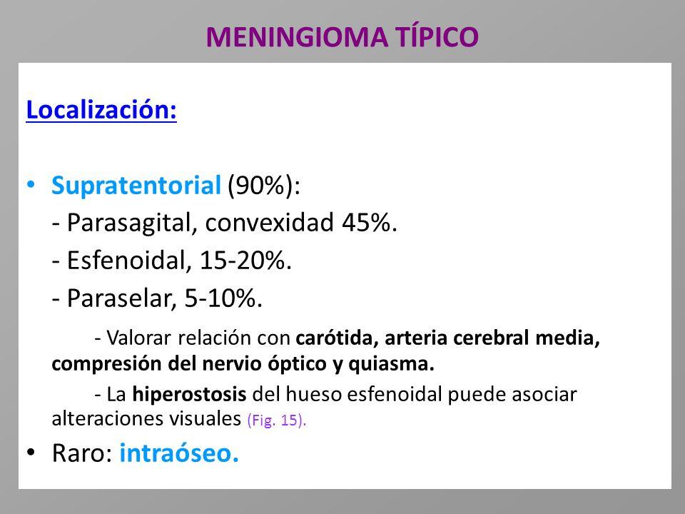 MENINGIOMA TÍPICO Localización: Supratentorial (90%):