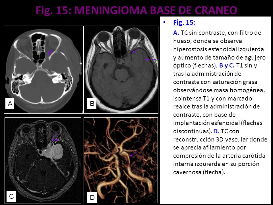 Fig. 15: MENINGIOMA BASE DE CRANEO