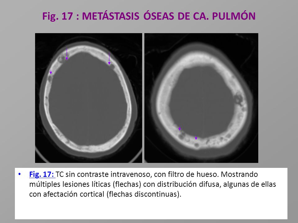 Fig. 17 : METÁSTASIS ÓSEAS DE CA. PULMÓN