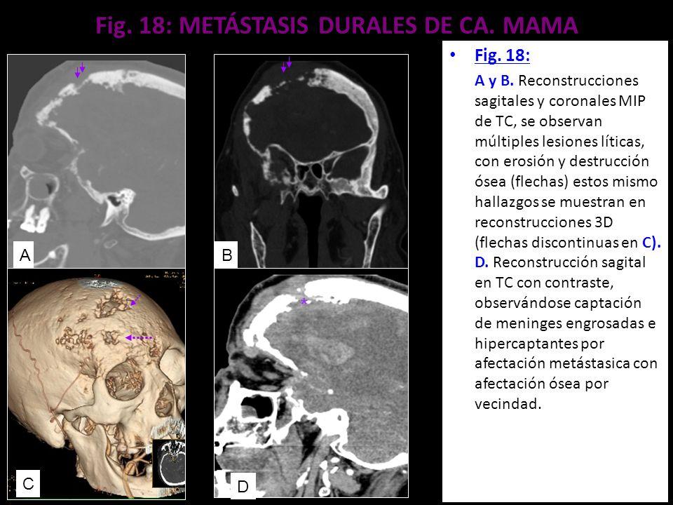 Fig. 18: METÁSTASIS DURALES DE CA. MAMA