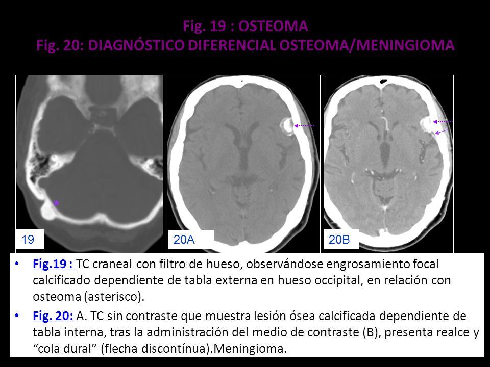 Fig. 19 : OSTEOMA Fig. 20: DIAGNÓSTICO DIFERENCIAL OSTEOMA/MENINGIOMA