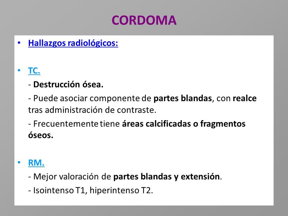 CORDOMA Hallazgos radiológicos: TC. - Destrucción ósea.