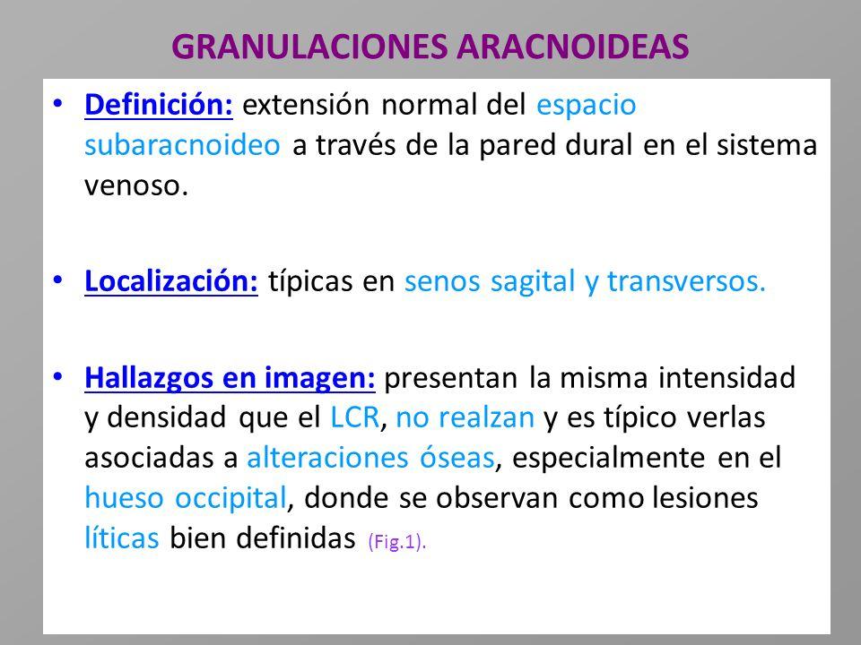 GRANULACIONES ARACNOIDEAS