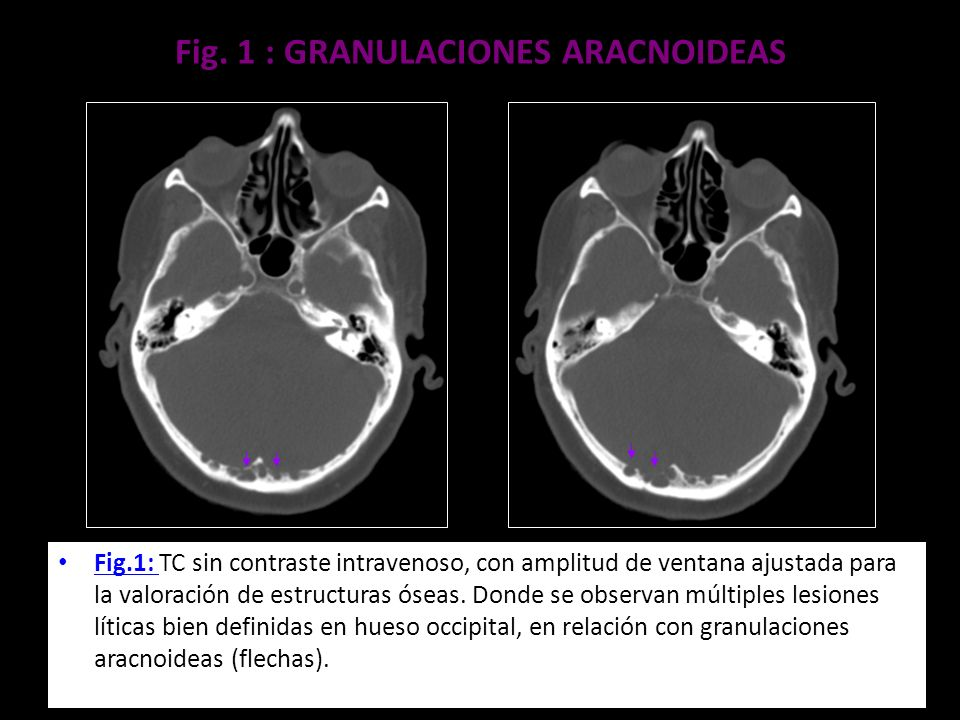 Fig. 1 : GRANULACIONES ARACNOIDEAS