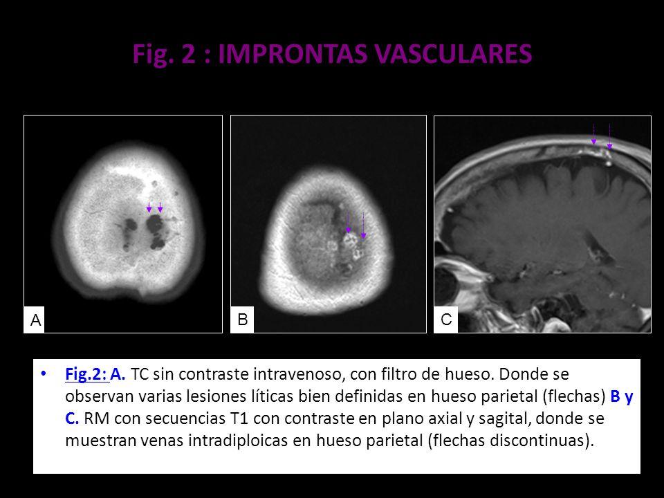 Fig. 2 : IMPRONTAS VASCULARES
