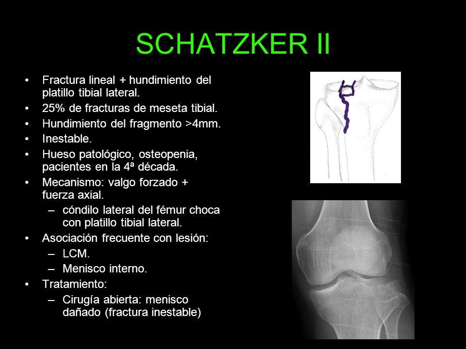 SCHATZKER II Fractura lineal + hundimiento del platillo tibial lateral. 25% de fracturas de meseta tibial.