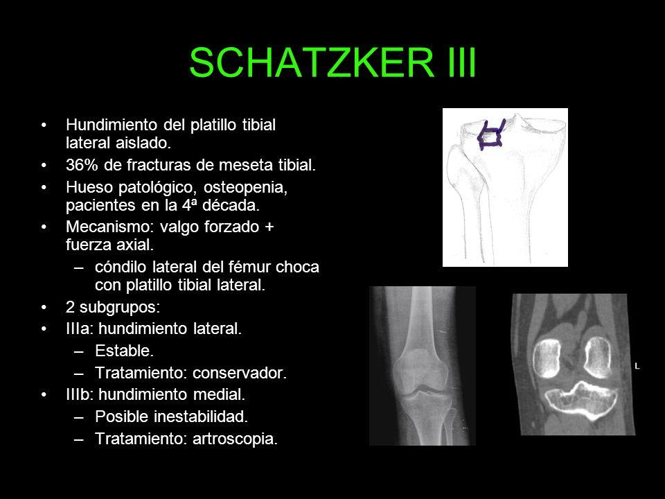 SCHATZKER III Hundimiento del platillo tibial lateral aislado.