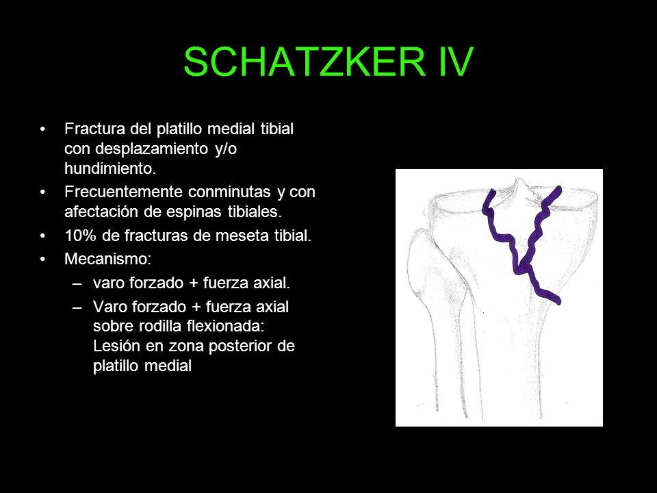 SCHATZKER IV Fractura del platillo medial tibial con desplazamiento y/o hundimiento. Frecuentemente conminutas y con afectación de espinas tibiales.