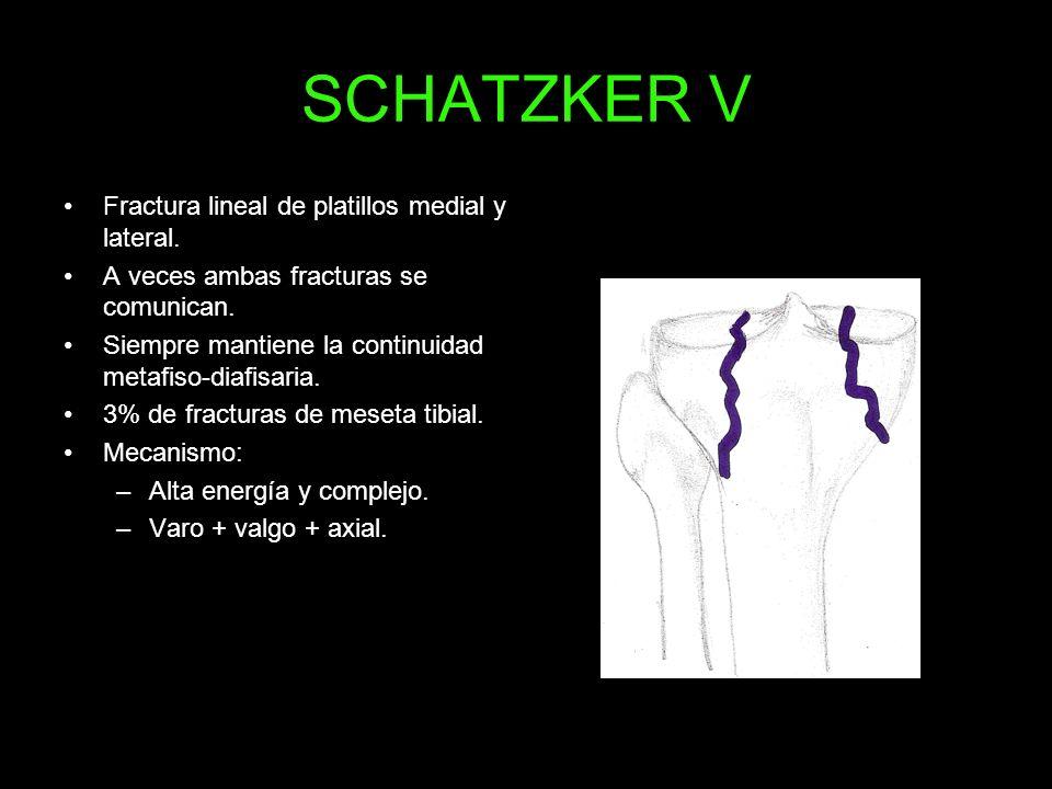 SCHATZKER V Fractura lineal de platillos medial y lateral.