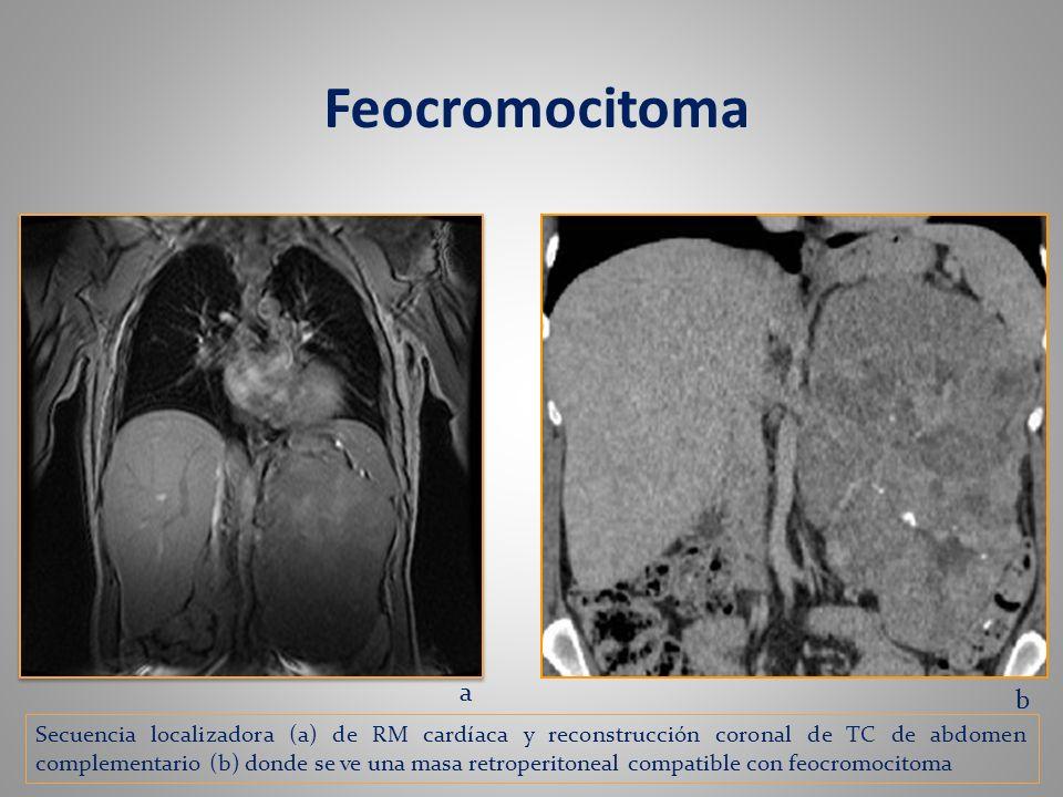 Feocromocitoma a. b.