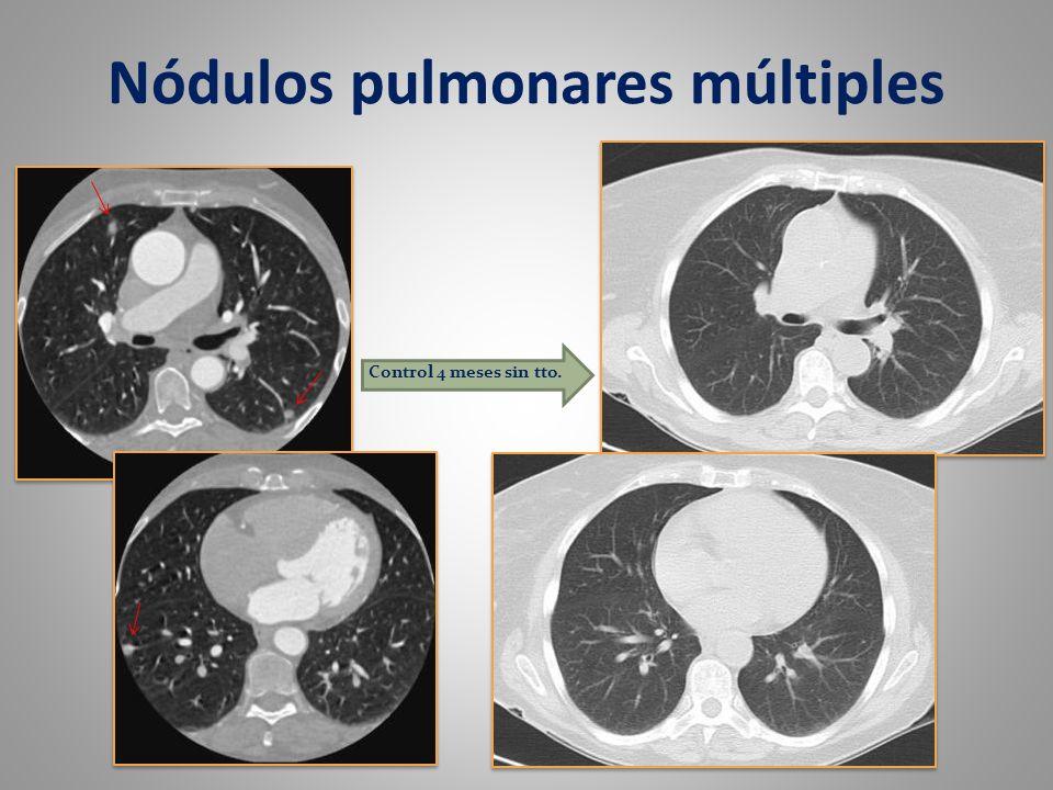 Nódulos pulmonares múltiples