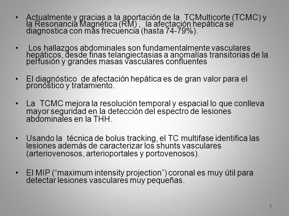 Actualmente y gracias a la aportación de la TCMulticorte (TCMC) y la Resonancia Magnética (RM) , la afectación hepática se diagnostica con más frecuencia (hasta 74-79%).