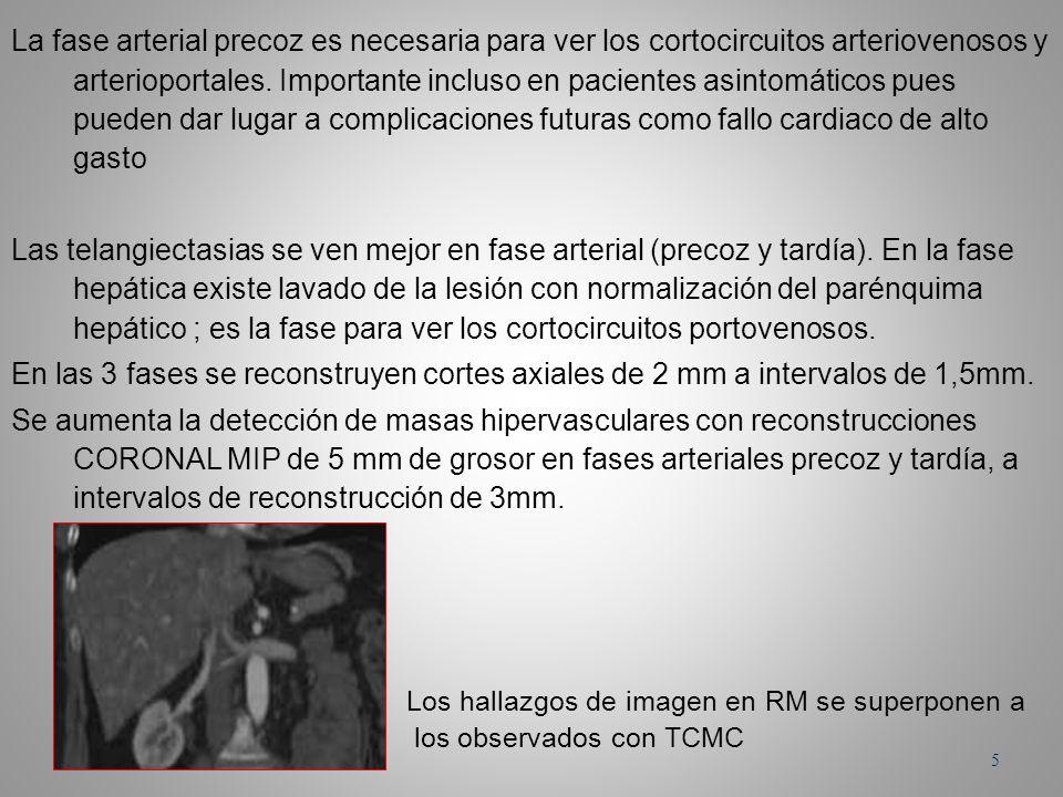 La fase arterial precoz es necesaria para ver los cortocircuitos arteriovenosos y arterioportales. Importante incluso en pacientes asintomáticos pues pueden dar lugar a complicaciones futuras como fallo cardiaco de alto gasto