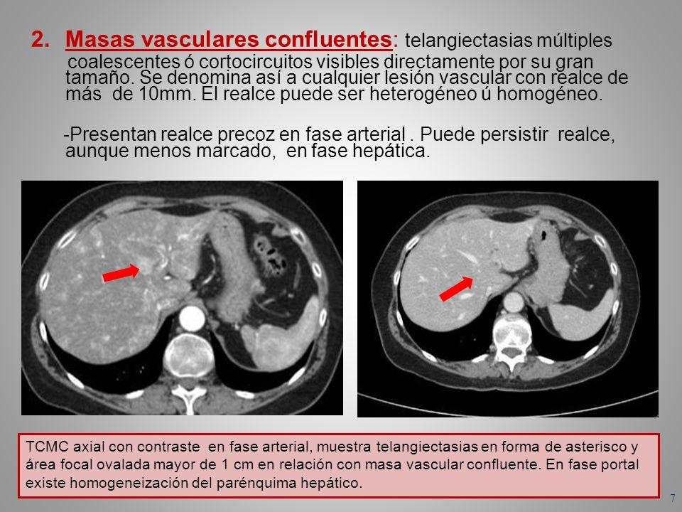 Masas vasculares confluentes: telangiectasias múltiples