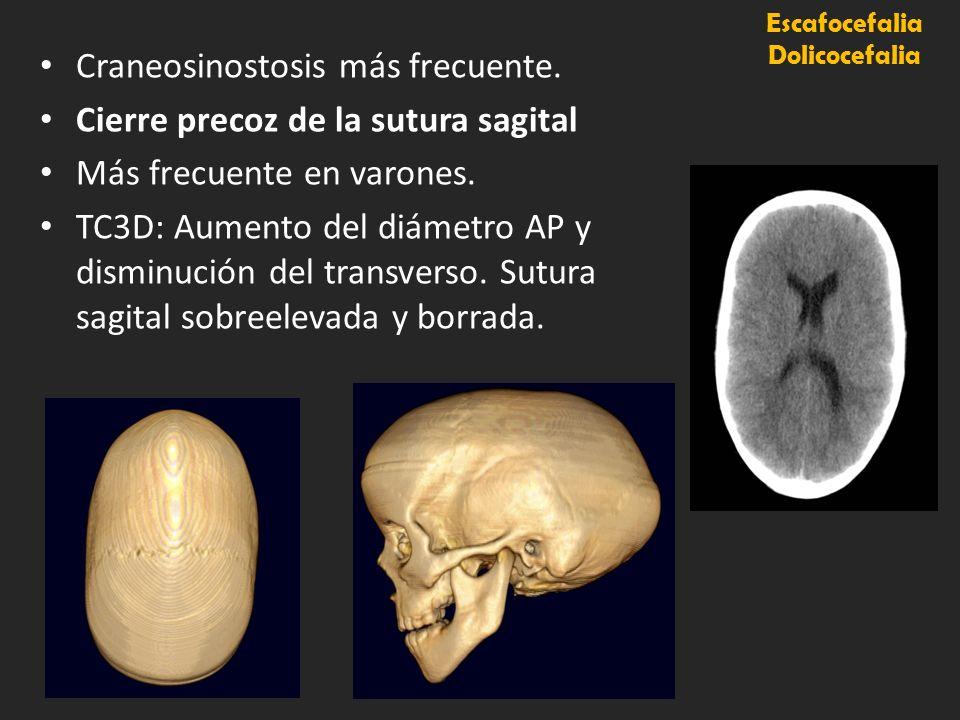 Escafocefalia Dolicocefalia