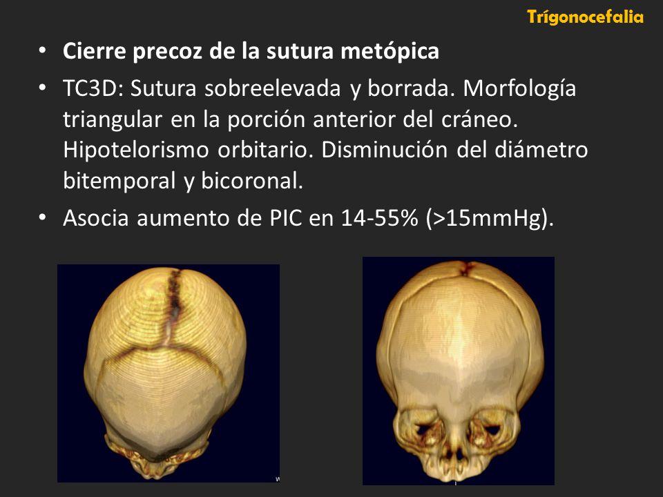 Cierre precoz de la sutura metópica