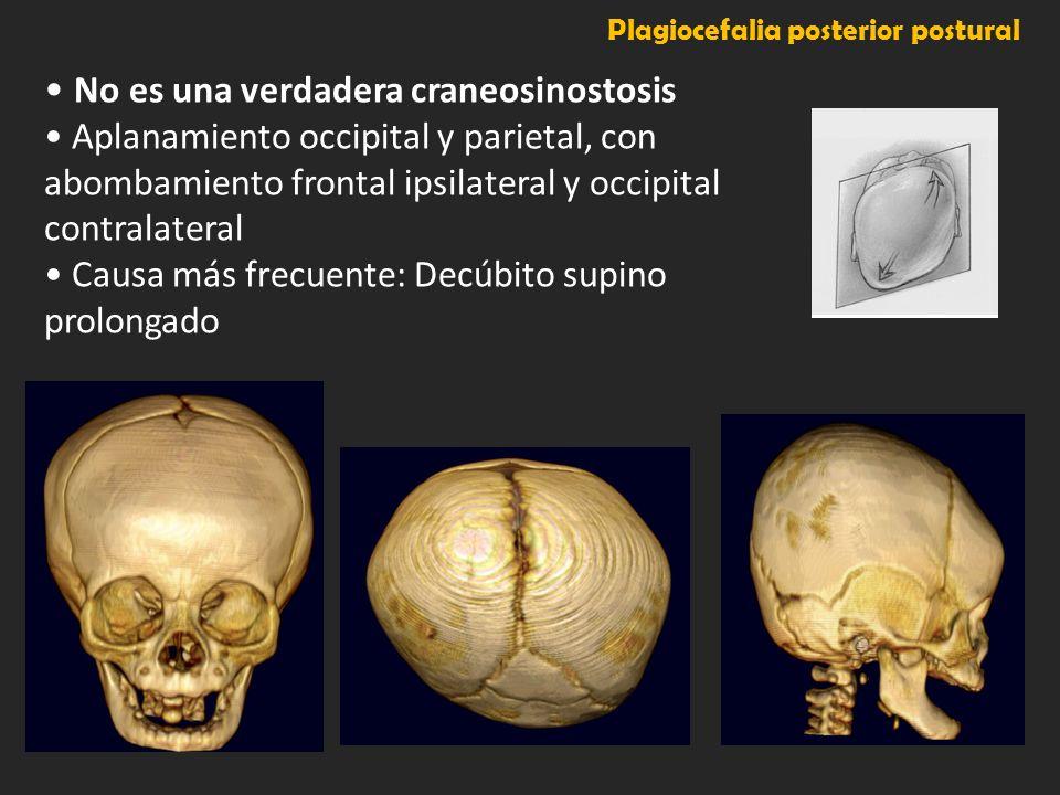 Plagiocefalia posterior postural