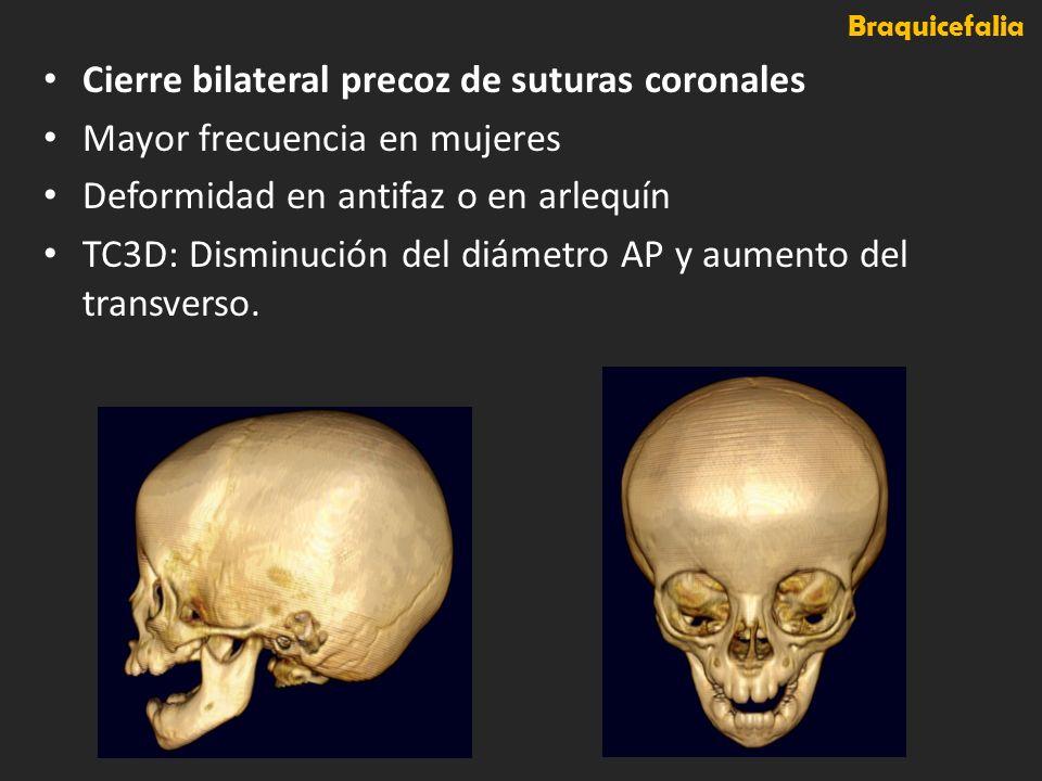 Cierre bilateral precoz de suturas coronales