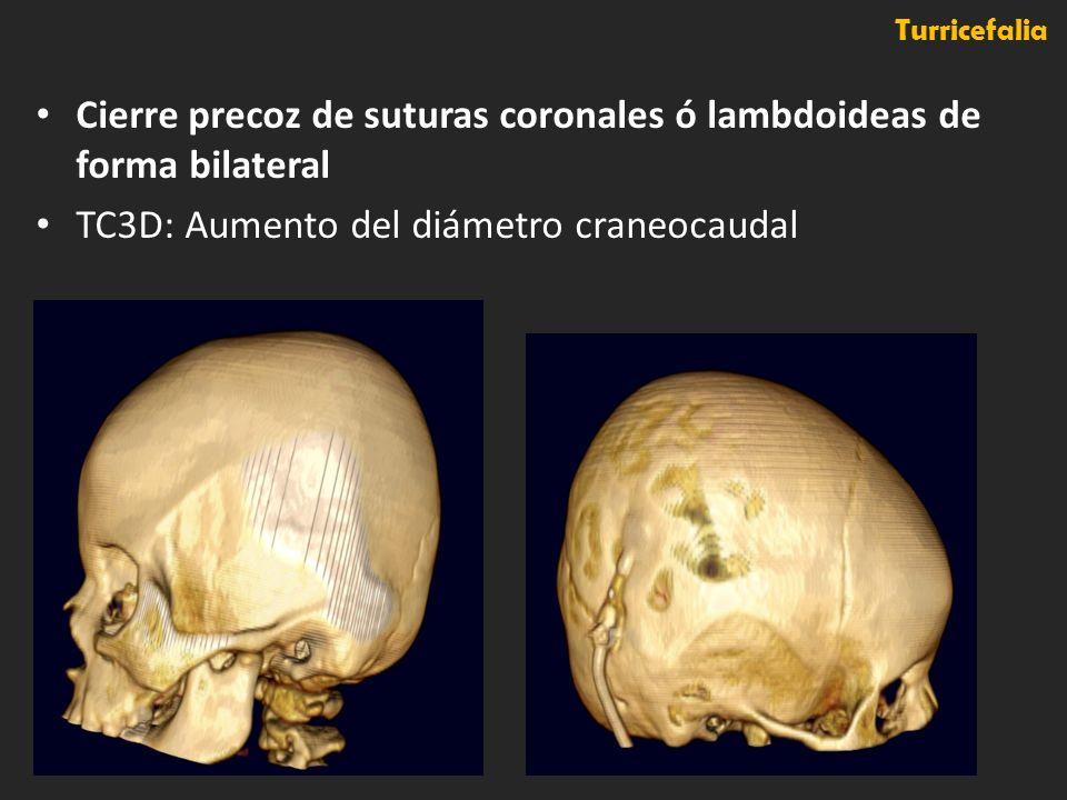 Cierre precoz de suturas coronales ó lambdoideas de forma bilateral